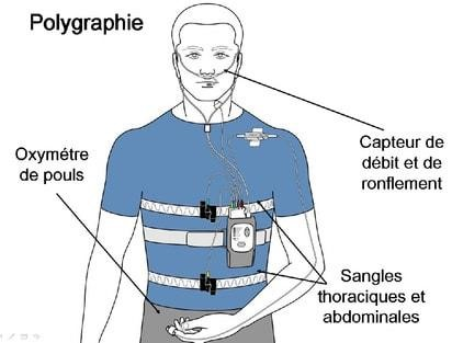 Polygraphie ventilatoire